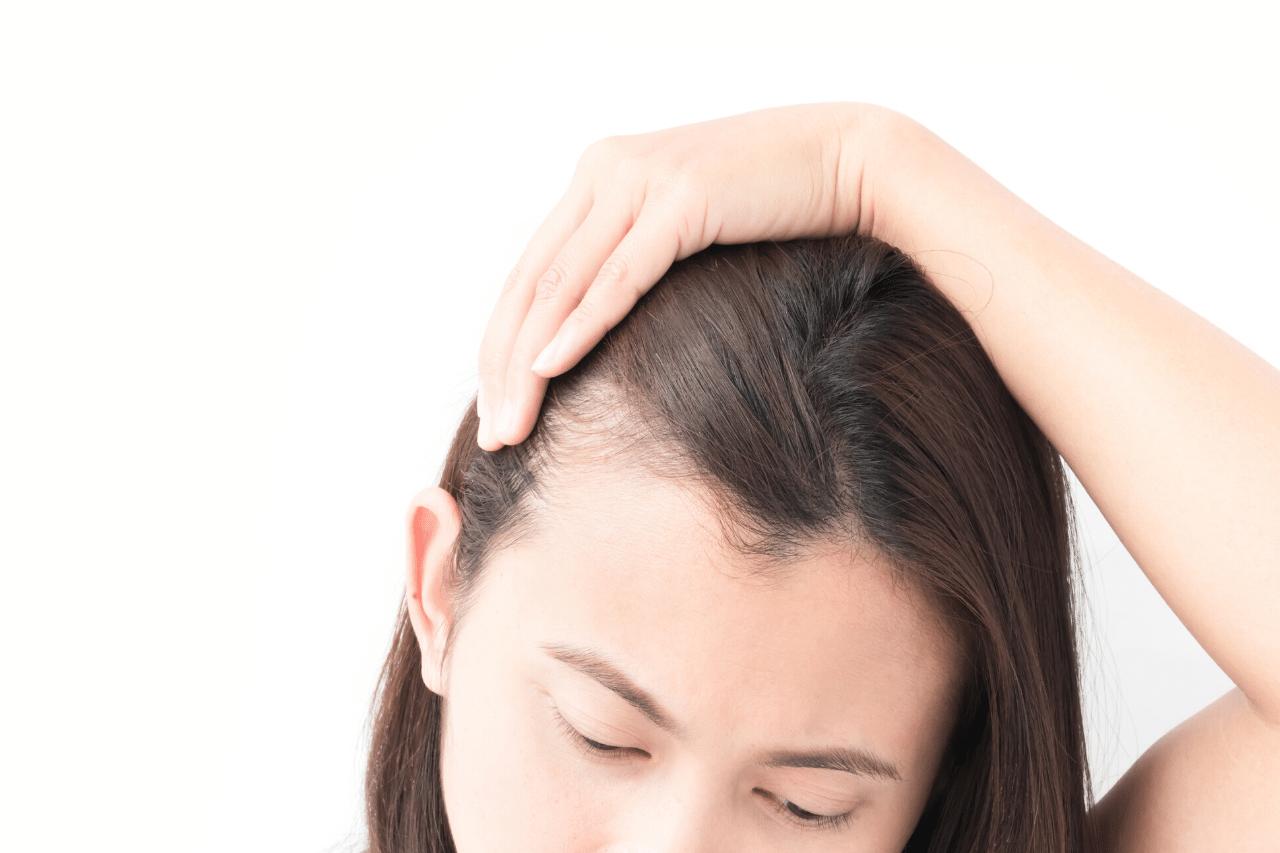 Kann Spironolacton eine wirksame Behandlung von Haarausfall sein