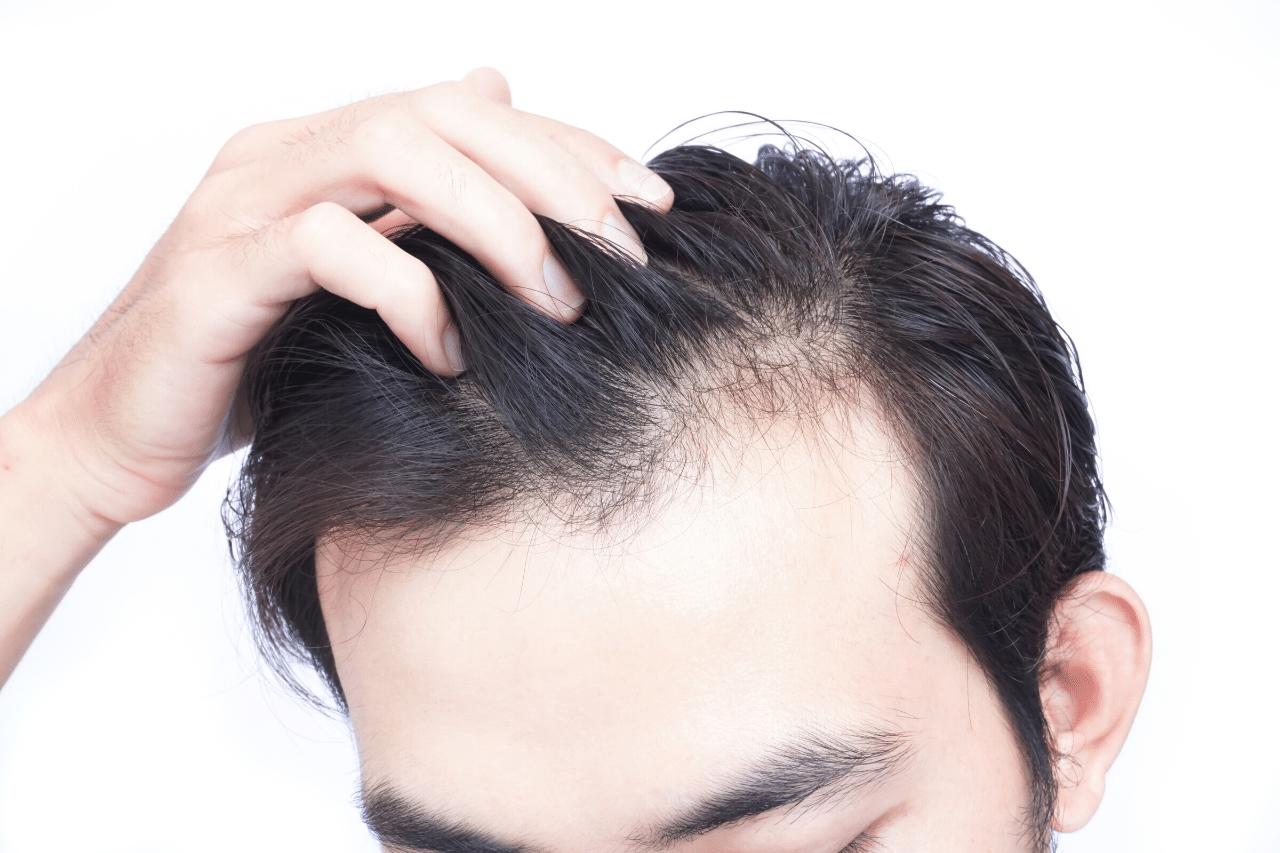 erste anzeichen von haarausfall