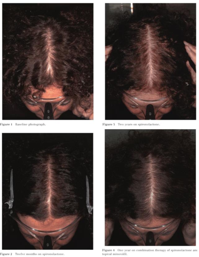 spironolacton studie haarausfall frau