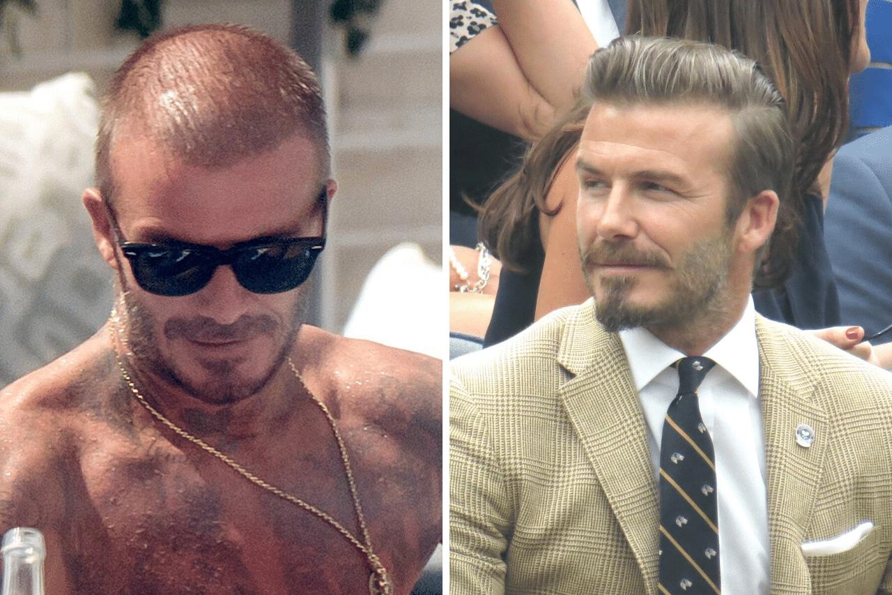David Beckham Haartransplantation Hatte er einen Eingriff oder nicht