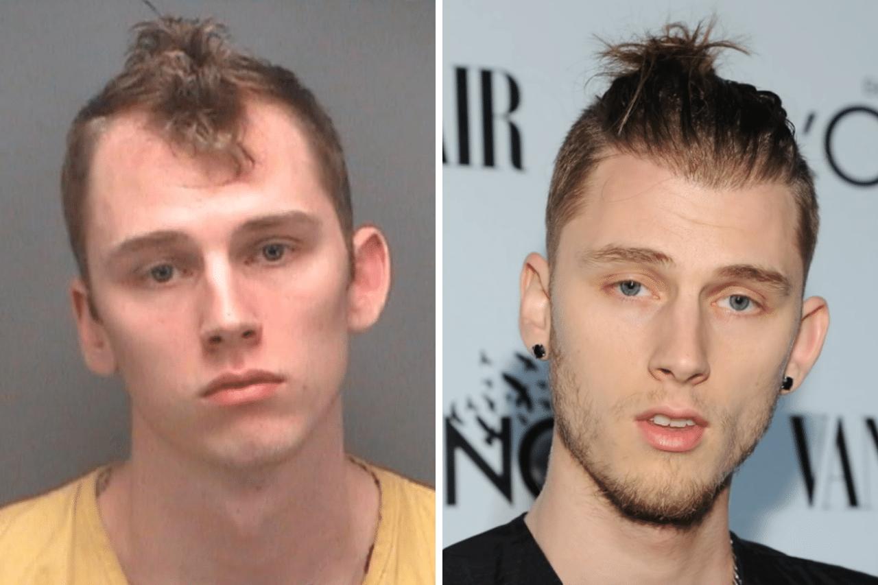 Machine Gun Kelly Haartransplantation Hatte MGK eine FUE oder FUT
