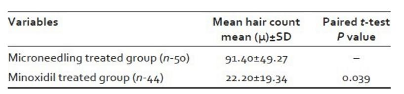 microneedling minoxidil studie