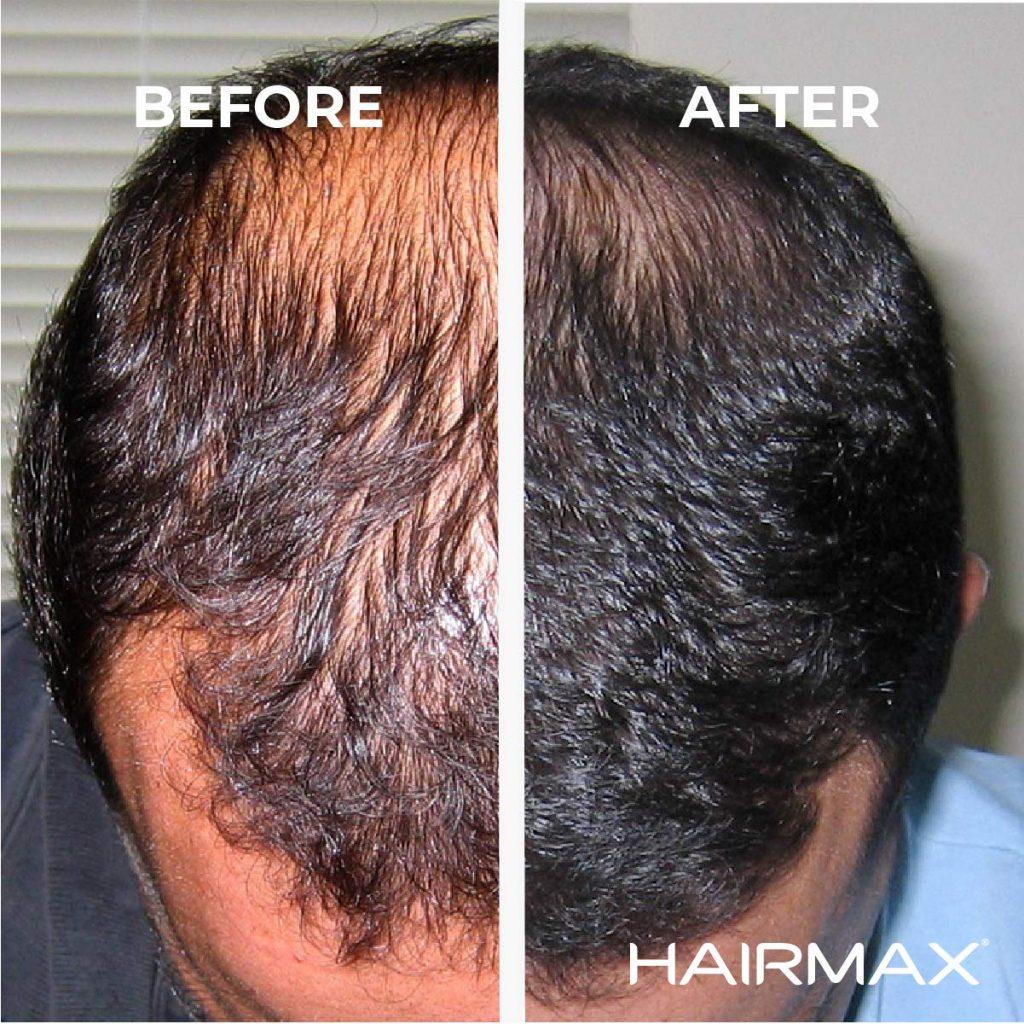 hairmax laserkamm vorher nachher