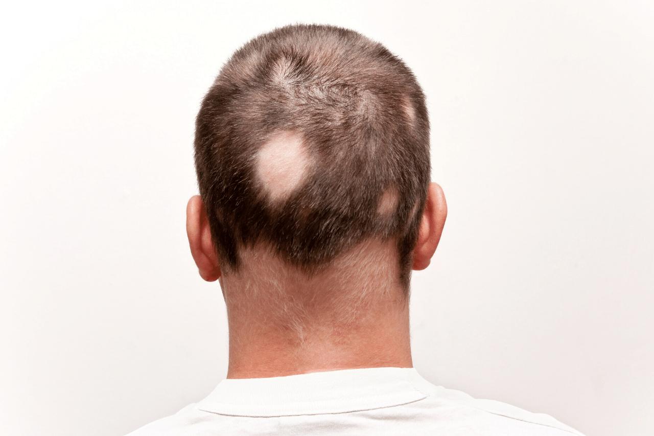 Ruxolitinib gegen kreisrunden Haarausfall Hilft es bei Alopecia Areata