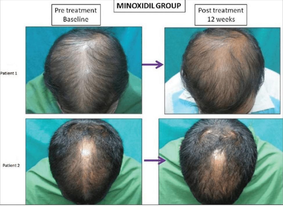 minoxidil und microneedling studie