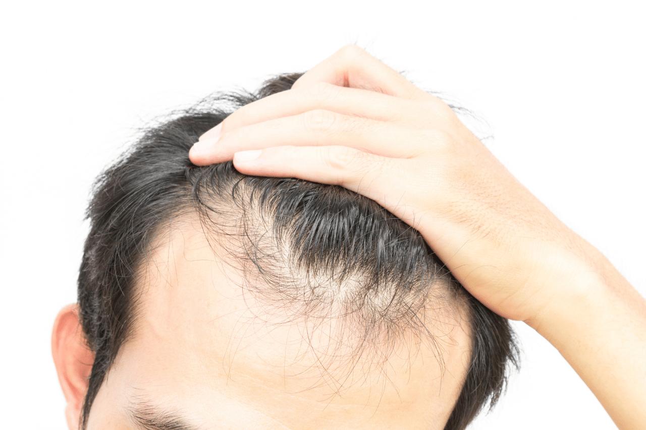 Norwood-Skala Die sieben Stadien des Haarausfalls bei Männern