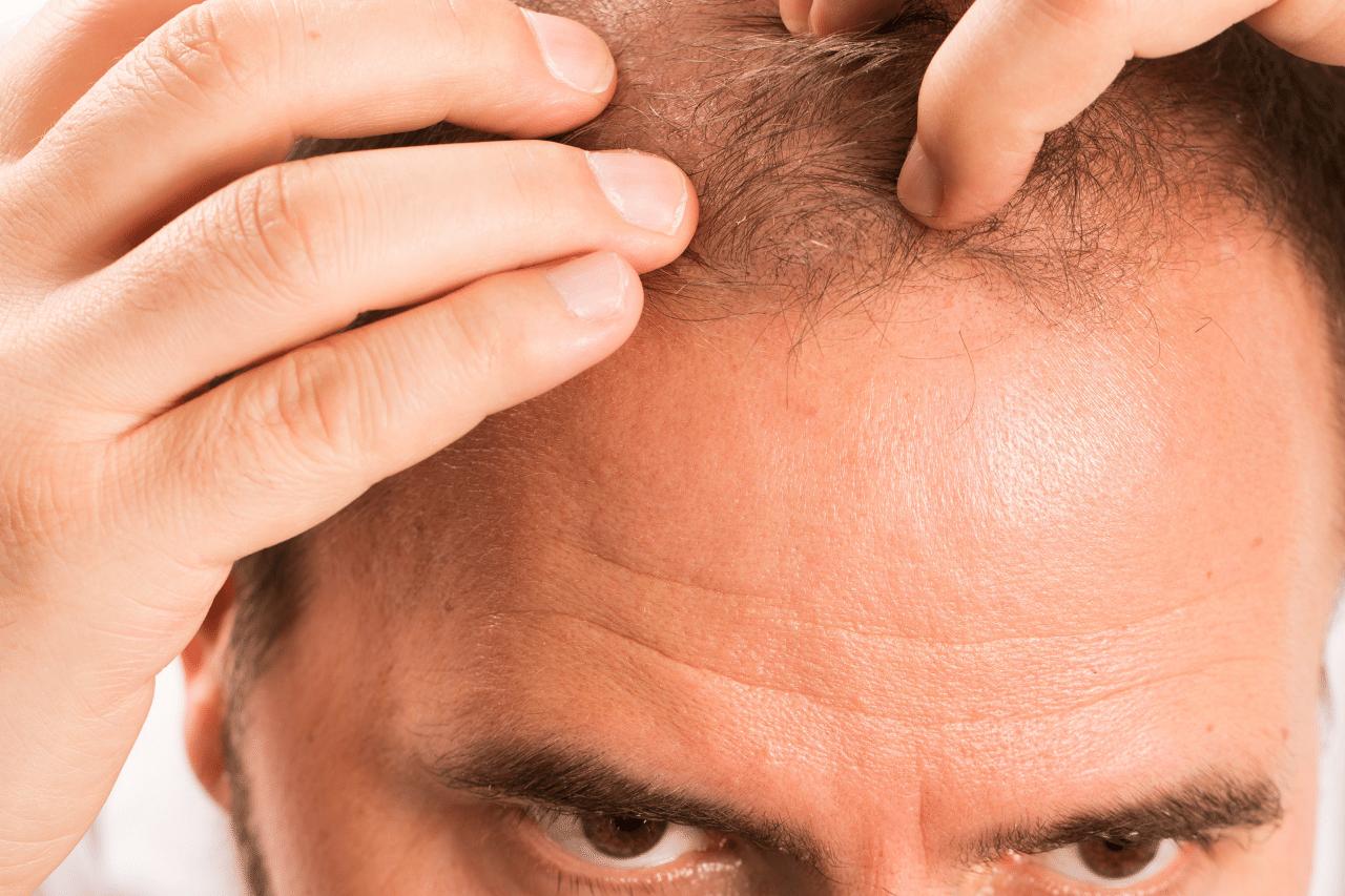 Zweite Haartransplantation Ab wann ist eine Haarverdichtung möglich